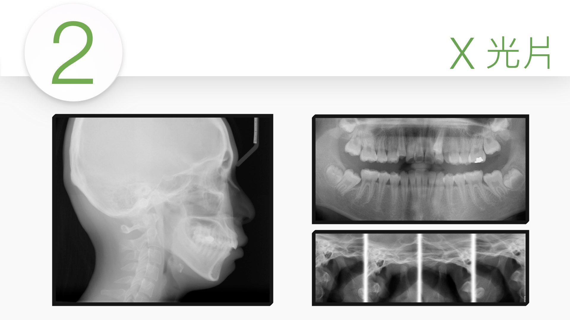 拍 X 光片